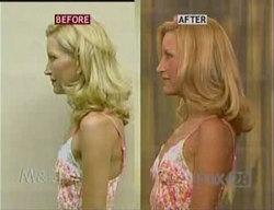 Botox breast lift