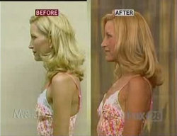 \'Botox Breast Lift\' - Before and After