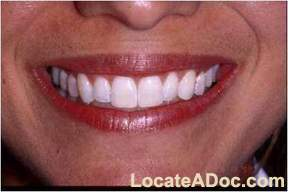 Zoom Teeth Whitening \'After\' Picture