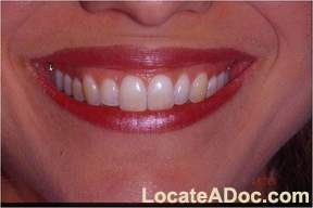 Zoom Teeth Whitening \'Before\' Picture