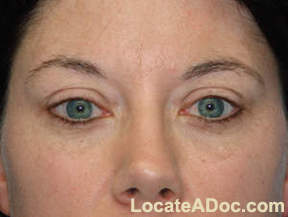 Eyelid Lift Surgery - Blephoraplasty Results